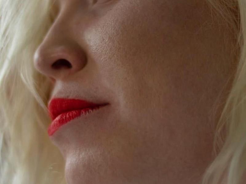 13 De junio, Día Internacional de Sensibilización sobre el albinismo