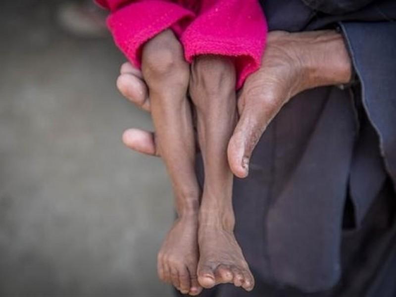 85,000 niños muertos por hambre en Yemen