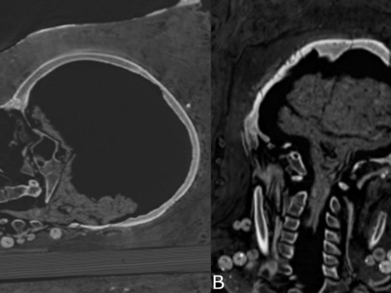 Arqueólogos descubren una momia egipcia que aún conserva algunos órganos
