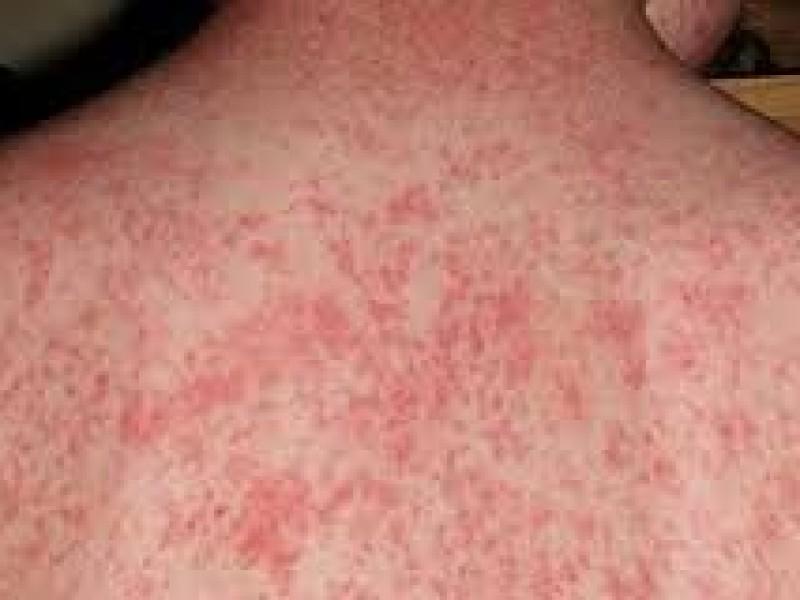 Asegura CDMX que ya está controlado brote de sarampión