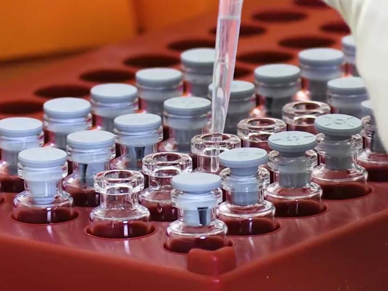 AstraZeneca prevé tener vacuna contra variante sudafricana del Covid-19