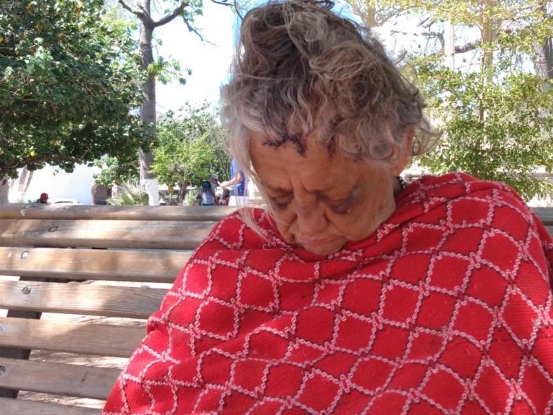 Brutal golpiza recibió Catalina, adulto mayor en el abandono, solicitanapoyo