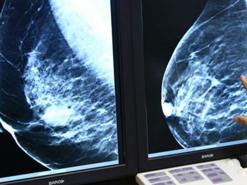 Buscan minimizar casos de cáncer de mama entre mujeres jaconenses