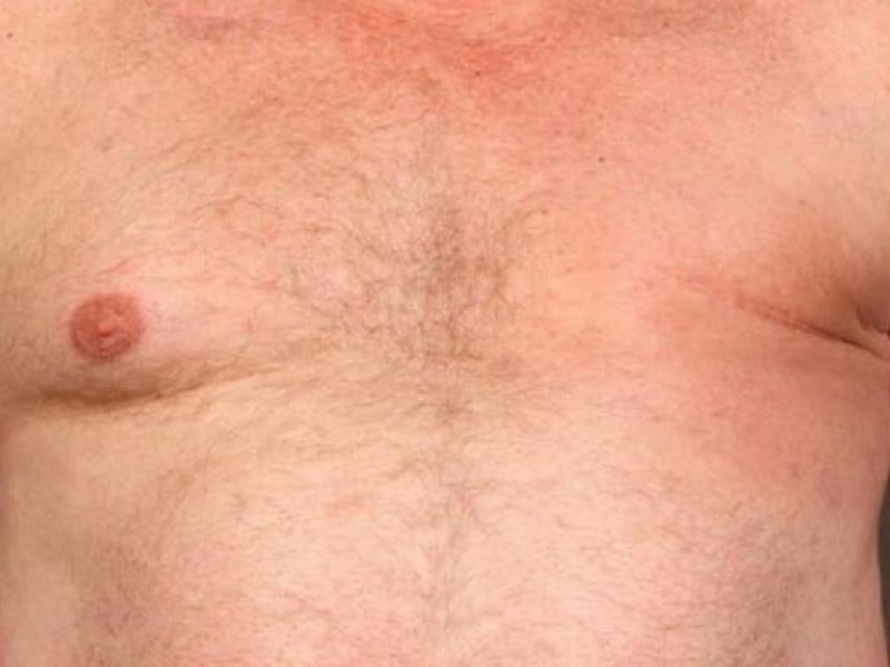 Cáncer de mama también afecta a los hombres