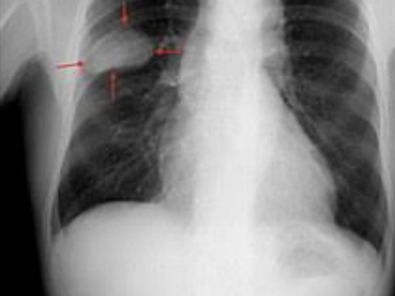 Cáncer de pulmón primer causa de muerte en México