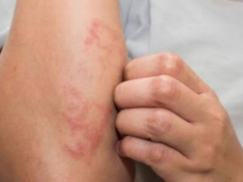 Chiapas duplica casos de lepra en 2020