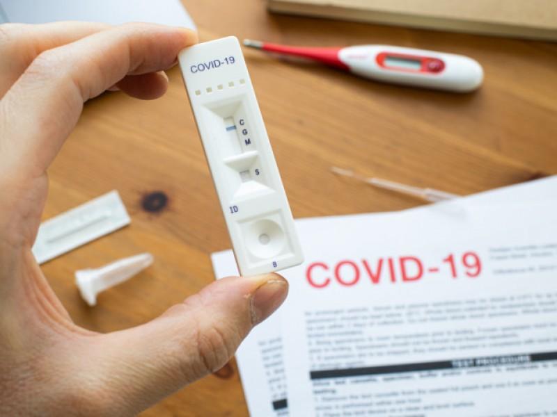 Científicos aseguran que los asintomáticos Covid-19 pierden pronto sus anticuerpos