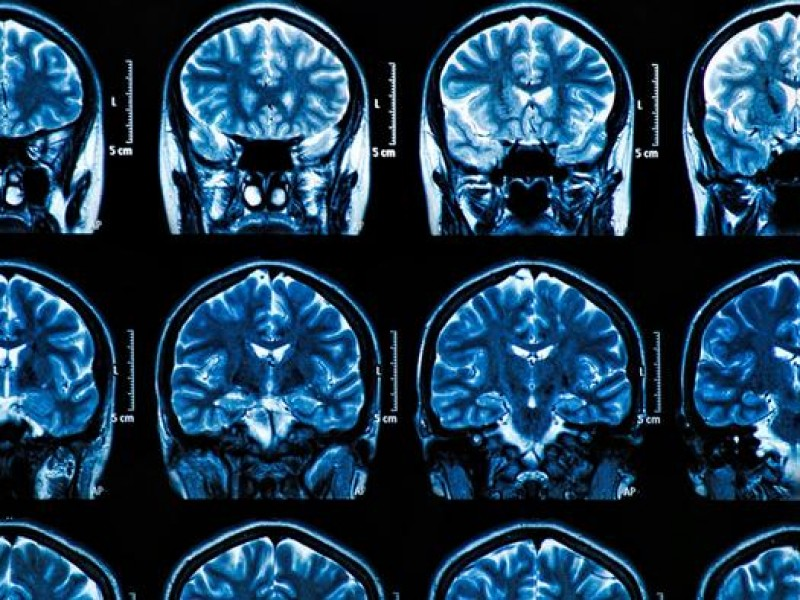 Científicos descubren que SARS-COV-2 causa graves afectaciones a células cerebrales