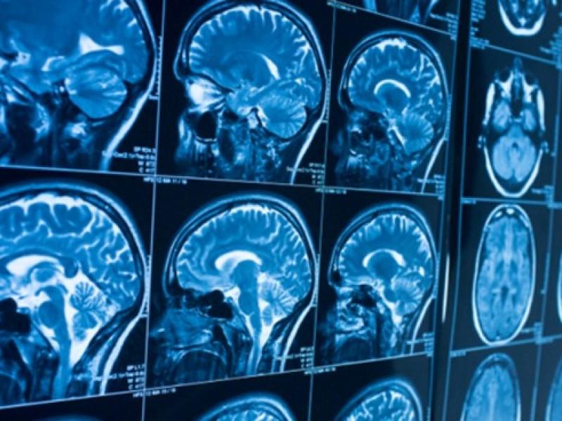 Científicos detectan daños en cerebro de pacientes muertos por Covid-19