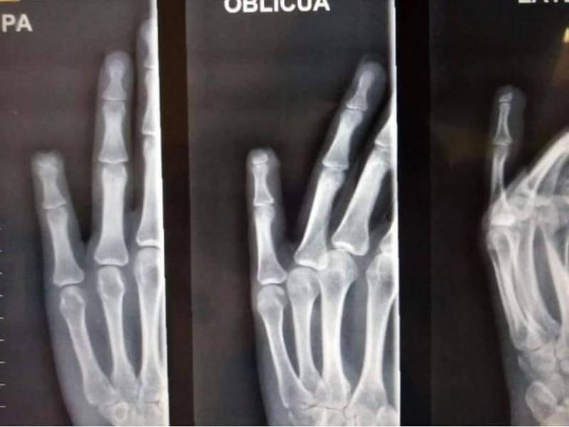 Ciudadana de Torreón pierde dedo meñique por abuso policiaco