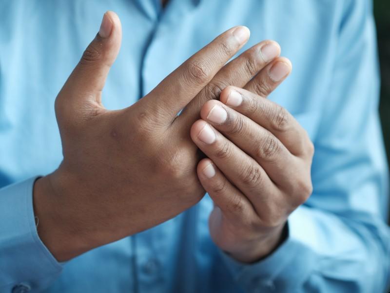 ¿Cómo puedo saber que tengo artritis reumatoide?