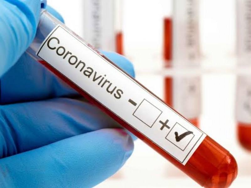 Confirman 3 casos positivos de Coronavirus en Zacatecas