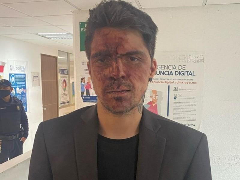 César D'Alessio, denuncia que fue golpeado por Arturo Montiel