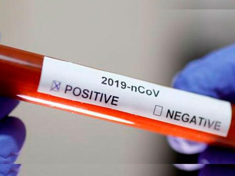 Decesos por covid se confirman con prueba positiva