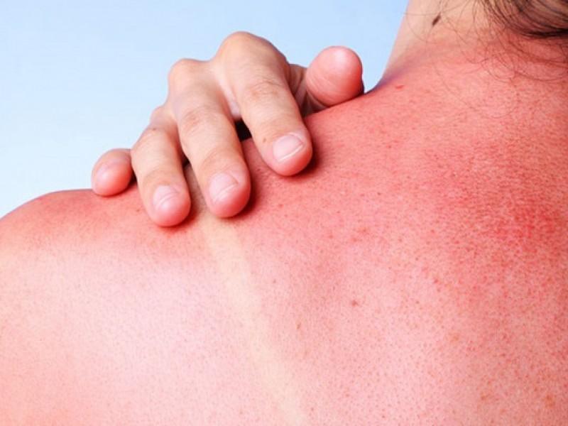 Días soleados propician enfermedades