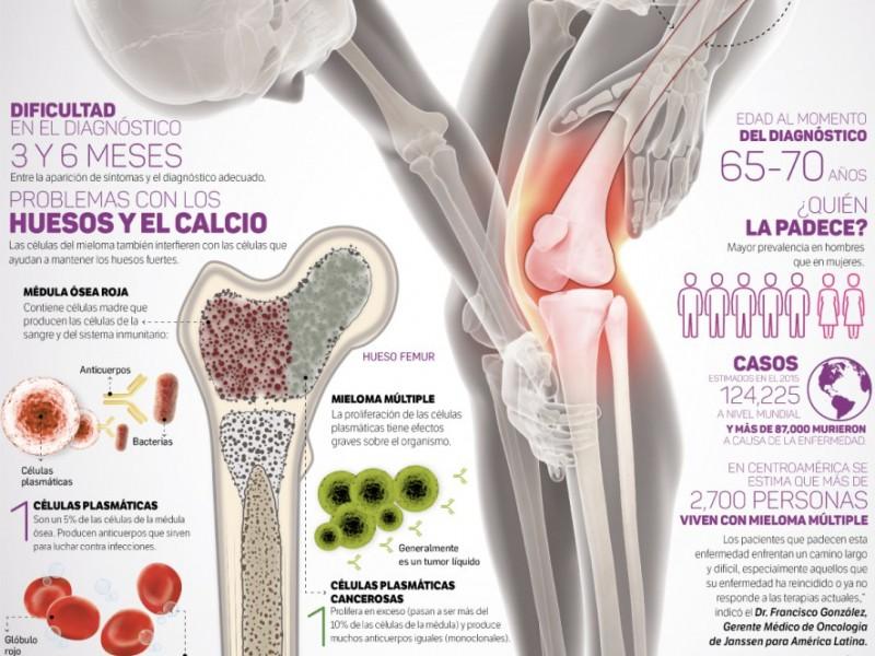 El Cáncer de huesos demanda mayor atención.