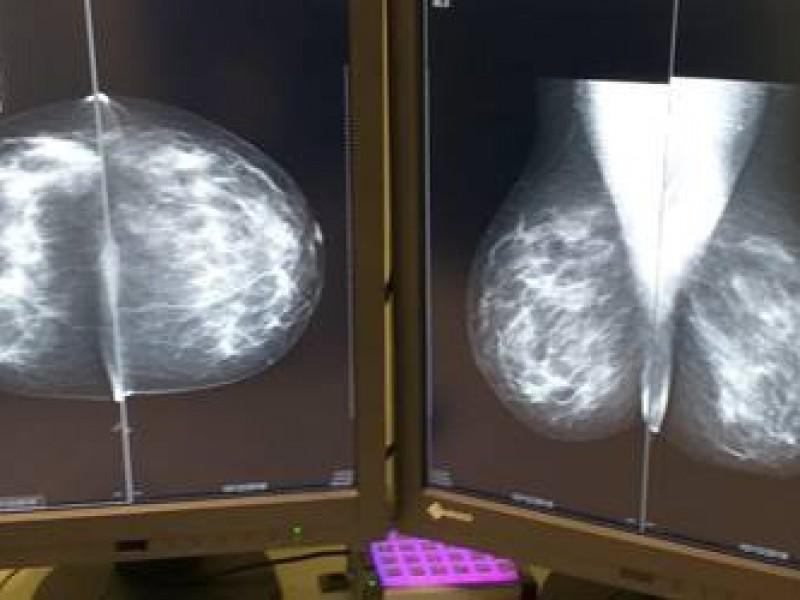 Exhortan a aprovechar campañas de mastografía para la detección oportuna