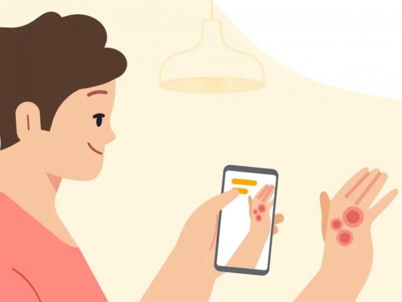 Google presenta aplicación capaz de identificar infecciones dermatológicas