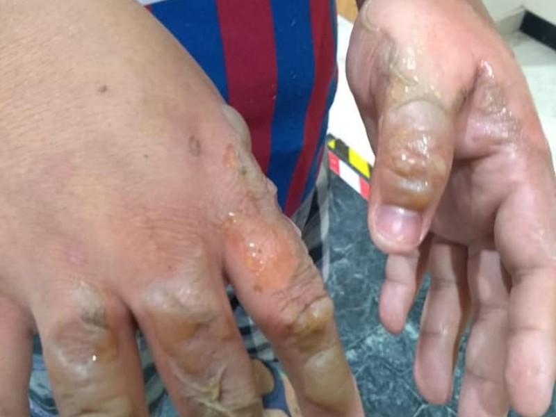 Indigentes atentan contra transeúntes con thinner y fuego