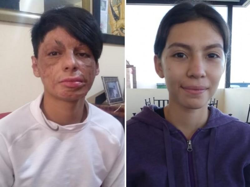 Jóvenes superan lesiones a un año de explosión en transformador