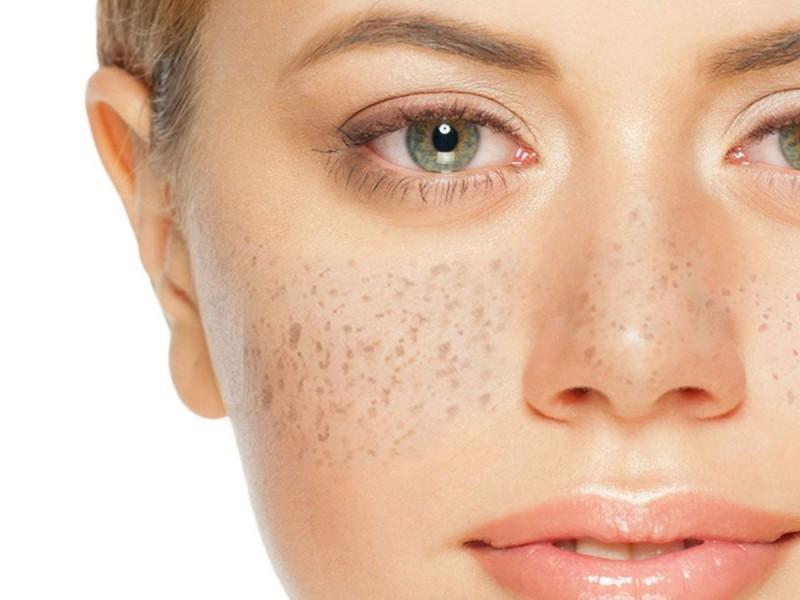 Las pecas pueden representar daño en la piel