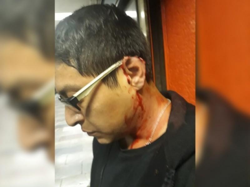 Le arrancan pedazo de oreja en el Metro