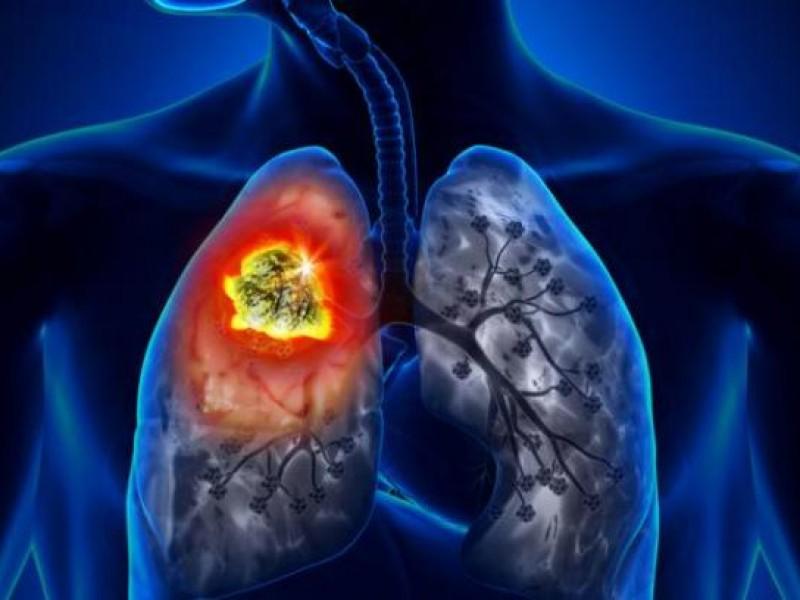 Exhortan a prevenir padecimientos respiratorios
