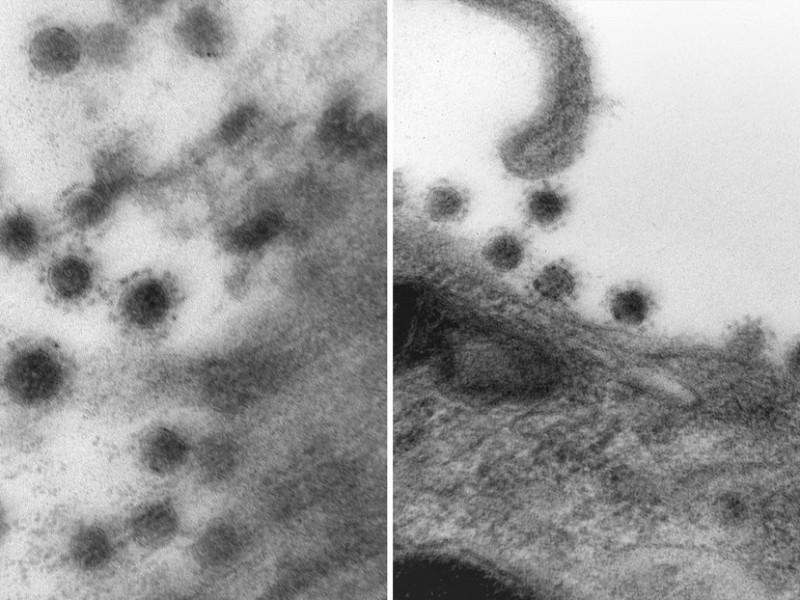 Logran captar en fotografía cepa Delta de la Covid-19