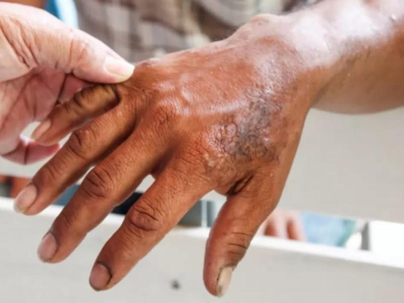 Nayarit entre los 5 estados con mayor concentración de lepra