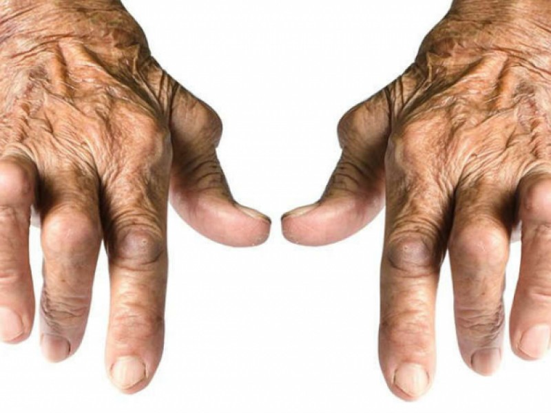 Pacientes que sufren de artritis buscan alternativas naturales