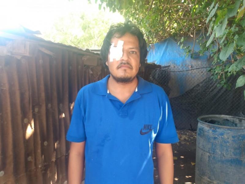 Pierde su ojo tras un accidente, pide se hagan responsables