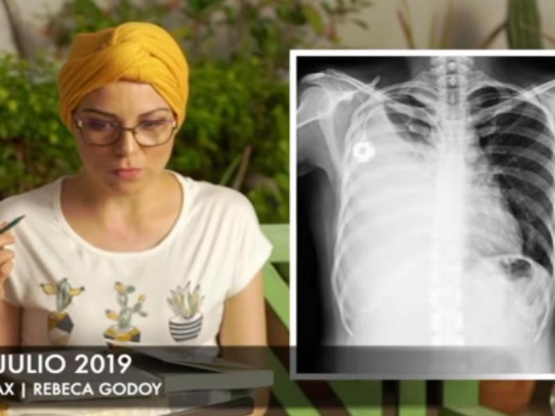 Rebeca da noticias sobre su salud y el cáncer