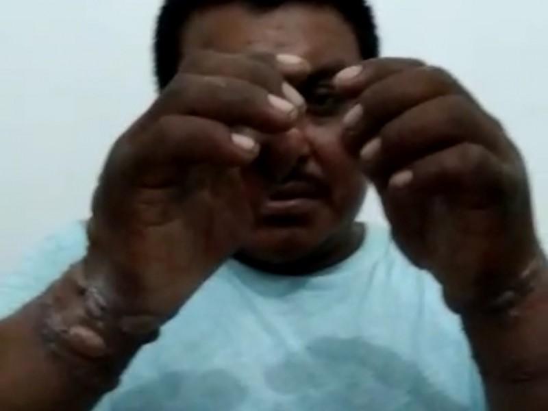 Rehenes liberados en conflicto territorial Carranza denuncian tortura