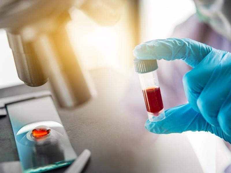 Rusia registra COVID-globulin, fármaco basado en plasma sanguíneo