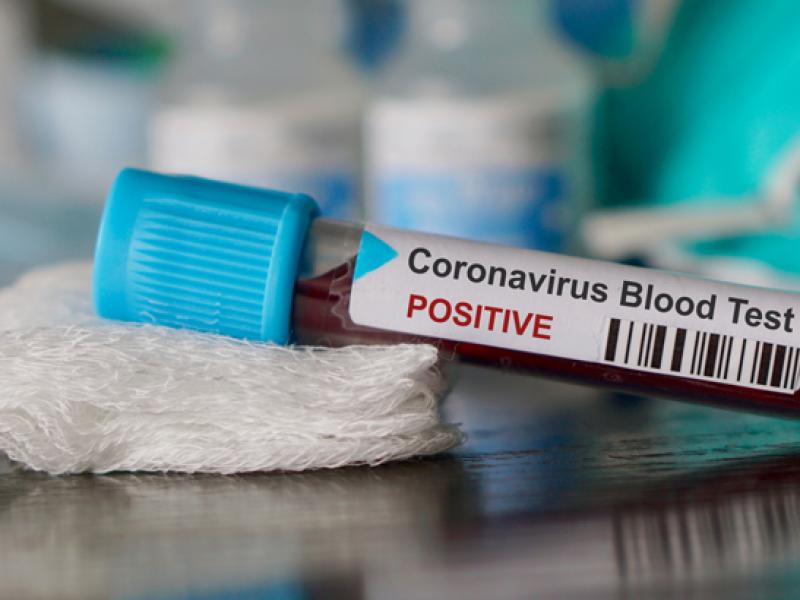 Se eleva a 1115 el número de muertos por Coronavirus