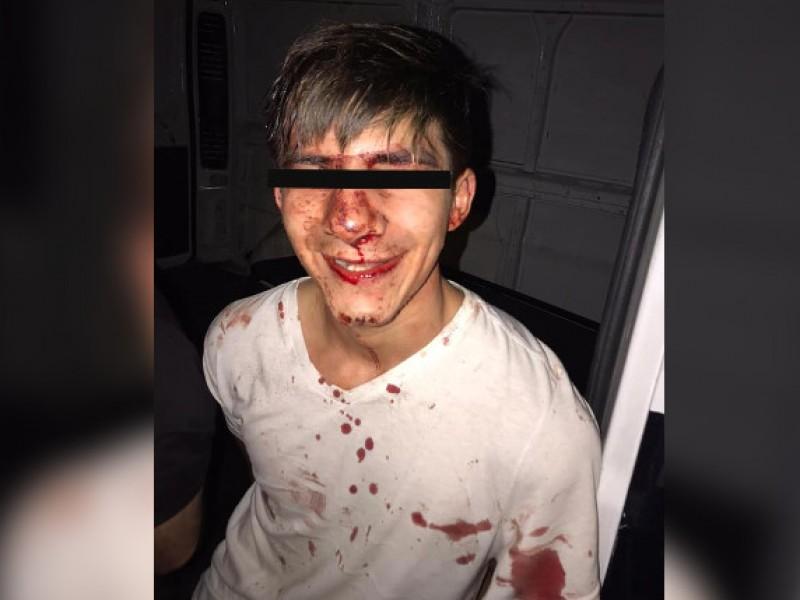Someterán a cirugía a joven presuntamente golpeado por Policía Morelia