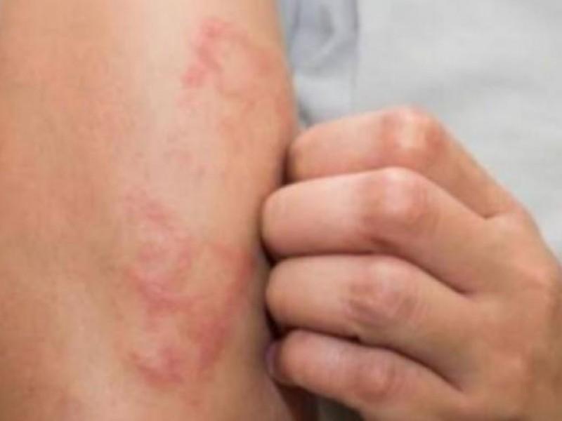 Ssa reporta 74 casos de lepra en México