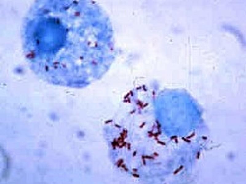 Suma Guaymas 164 casos de rickettsia