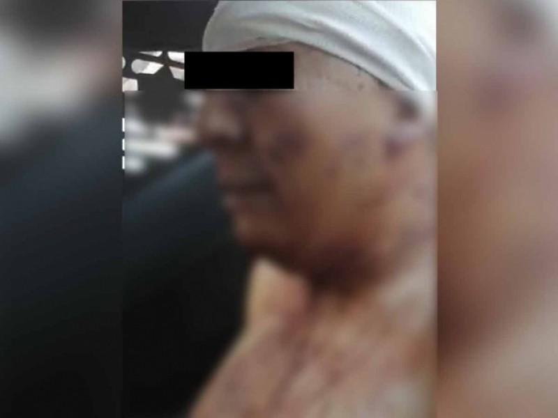 Terrible: Hombre asesina y desolla a su esposa