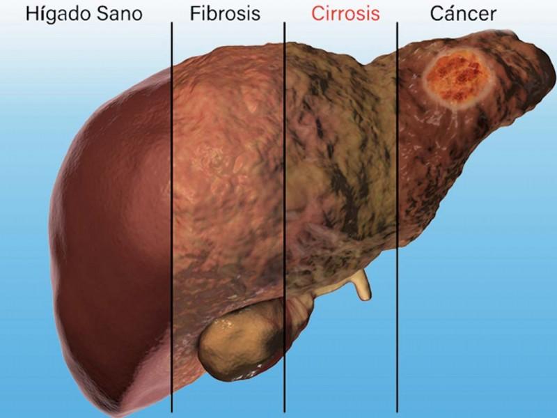 Veracruz con más casos de cirrosis hepática alcohólica