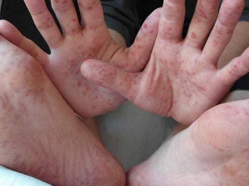 Virus de Coxsackie presente en niños